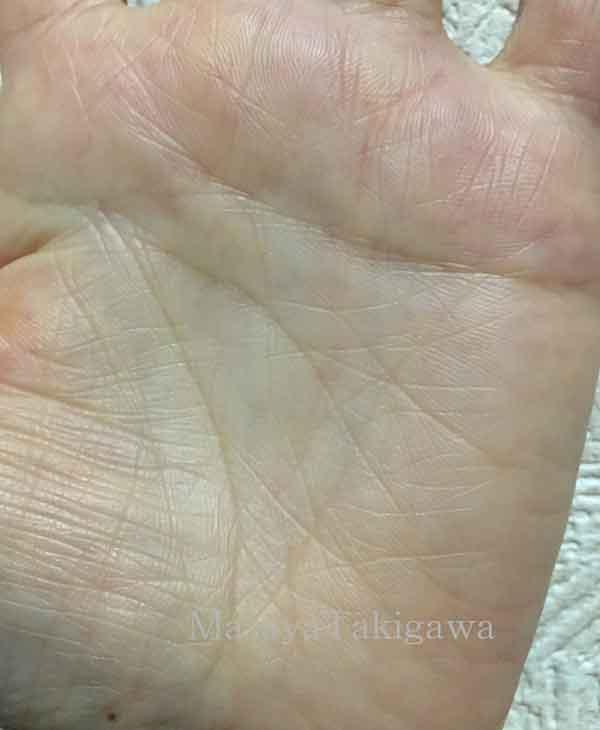フィッシュ(魚紋)